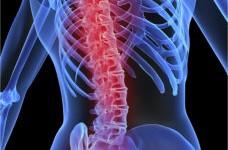 skeleton osteoporosis - image