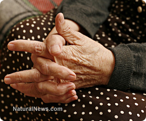 Arthritis -image from Natural News