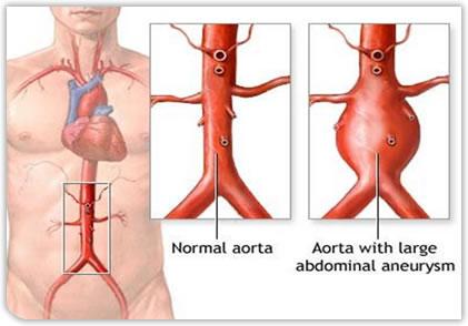 Abdominal_aortic_aneurysm